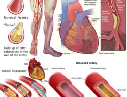 Human Body Disease 10 Fast Quizzes