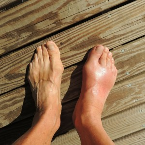 Gout Affected Foot